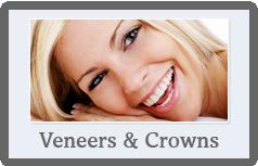 veneers-crowns dentist Nowra 2